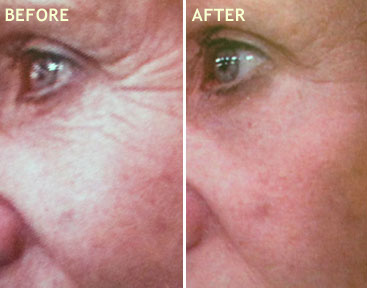 REJUVENATING ANTI AGING FACIAL WITH ULTRASOUND