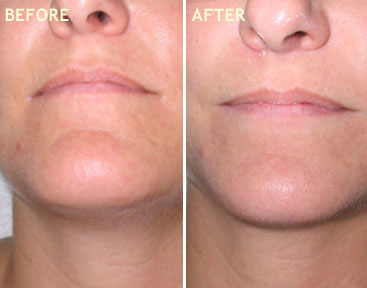 SPECIAL LIP/CHIN REJUVENATING TREATMENT