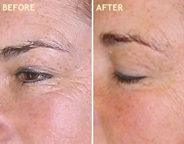 SPECIAL EYE REJUVENATING TREATMENT