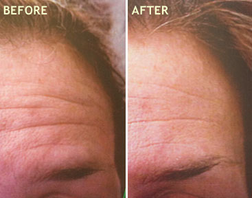 MICRODERMABRASION with ULTRASOUND combo