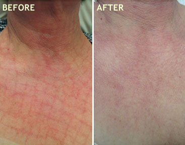 NECK AND DECOLLETE TREATMENT