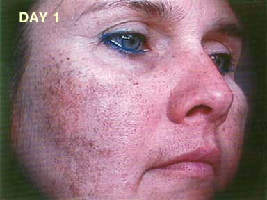 Sciton Photo Laser Treatment